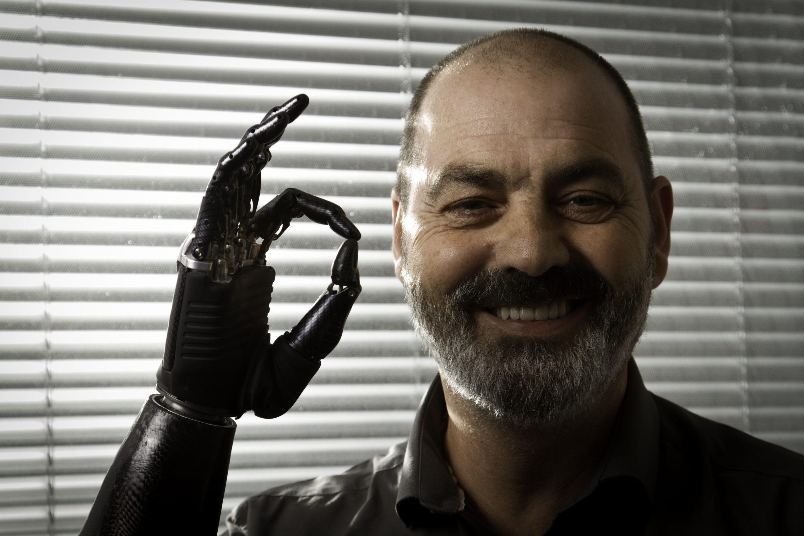 Bionic hand makes Super Bowl