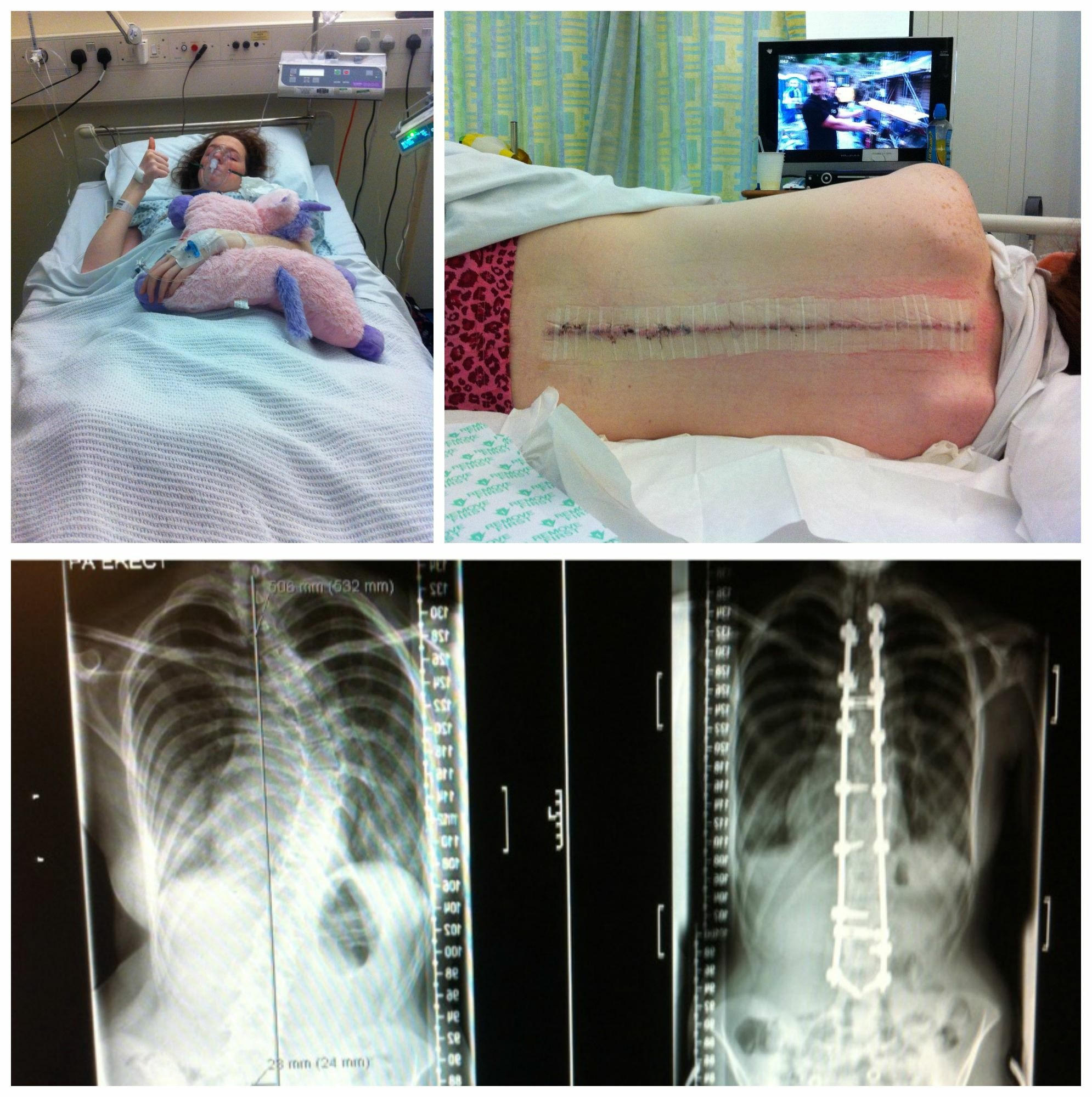 Marfan Syndrome Awareness Month – Personal Story